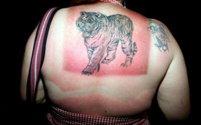 Solforbrændt kvinde, der har glemt at smører sig i solcreme og nu trænger til sun lotion.
